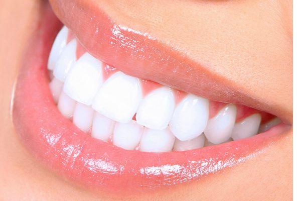 terapie-dentara5